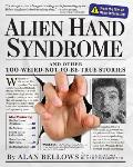 Alien Hand Syndrome & Other Too Weird