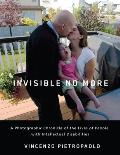 Invisible No More A Photographic Chronicle of the Lives of People with Intellectual