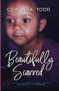 Beautifully Scarred: A Story of a Mother's Resilience, Faith, and Unwillingness to Let Her Baby Die.