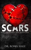 Scars: How to Be Healed from Brokenness